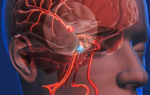 Aneurisma cerebral operado por un brazo robótico